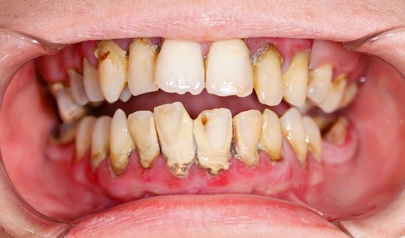 Lấy cao răng là kỹ thuật giúp loại bỏ mảng bám cần được thực hiện định kỳ