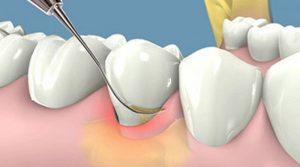 Lấy cao răng ở đâu uy tín, chất lượng là băn khoăn của nhiều người