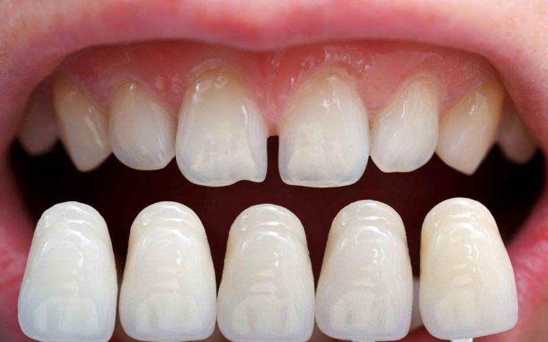 Mặt dán sứ Veneer mang đến tính thẩm mỹ cho hàm răng của bạn