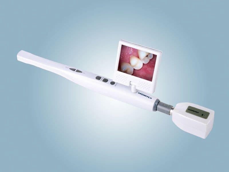 """Máy ảnh trong miệng được xem là một phát minh """"vĩ đại"""" cho ngành nha khoa"""