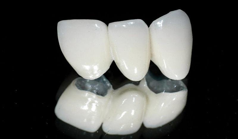 Răng sứ Venus được nhiều người lựa chọn hiện nay