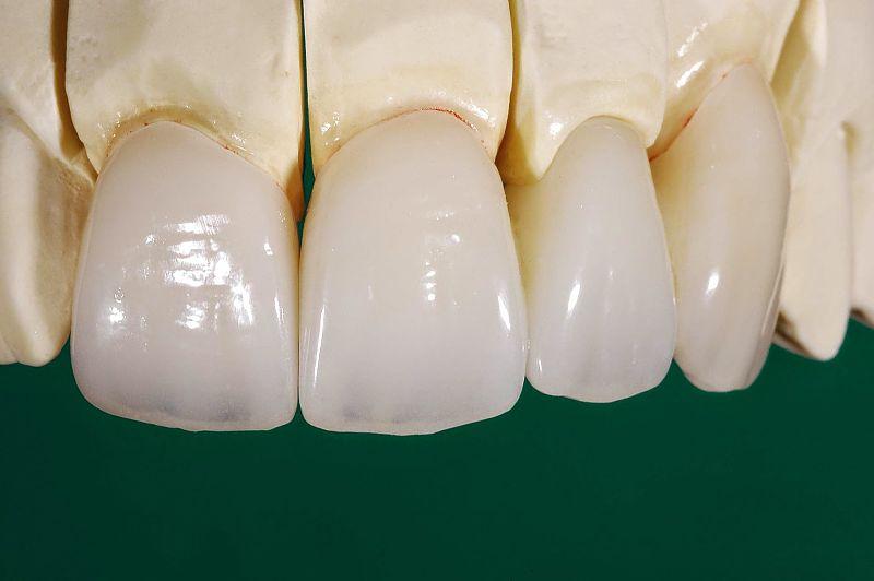 Răng sứ Ceramill có độ bền cao và không gây kích ứng