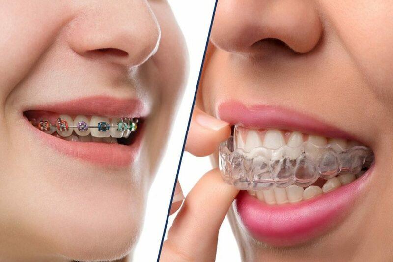 Niềng răng nhổ răng số 3 sẽ được áp dụng ở một số trường hợp