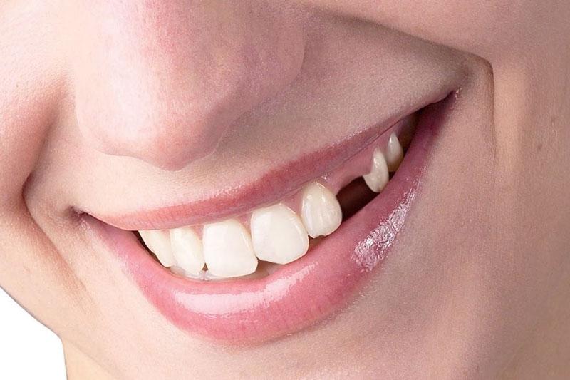 Nhổ răng số 3 không gây quá nhiều đau đớn