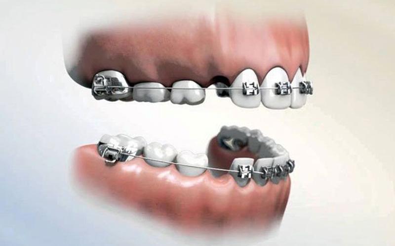 Bác sĩ chuyên khoa sẽ thăm khám kỹ càng trước khi chỉ định người bệnh niềng răng nhổ răng số 4