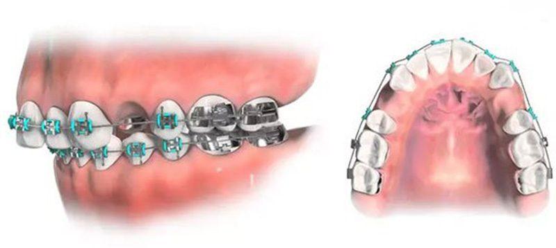 Niềng răng nhổ răng số 4 sẽ đảm bảo an toàn cho người thực hiện