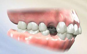 Niềng răng nhổ răng số 4