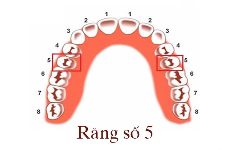 Răng số 5 có chức năng cực kỳ quan trọng trên cung hàm và gần như không thể thay thế