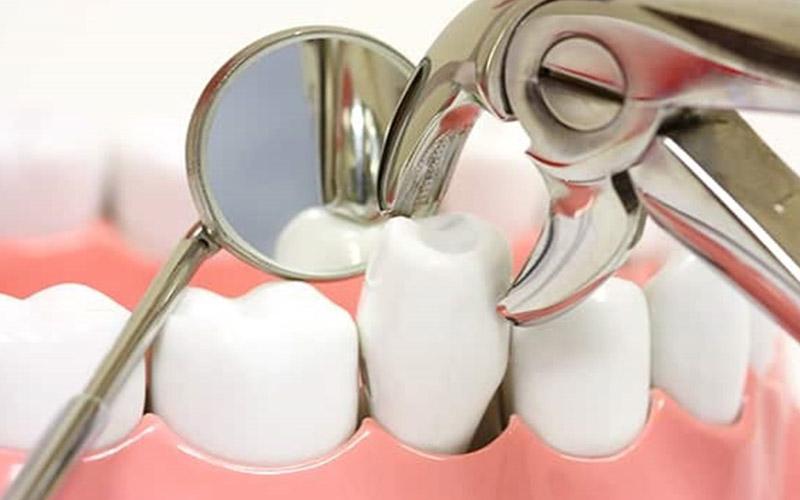 Niềng răng nhổ răng số 5 nên hay không là thắc mắc chung của nhiều người