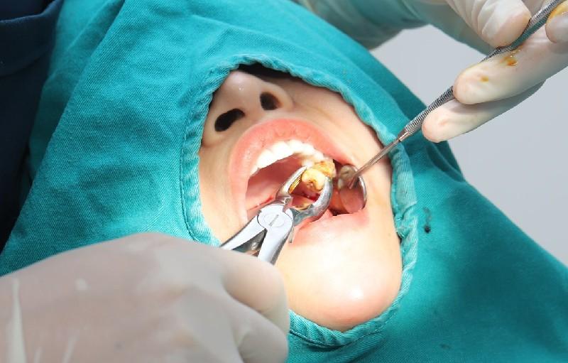 Nhổ răng số 6 khi niềng răng có nên hay không?
