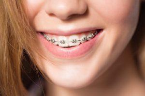 Niềng răng nhổ răng số 6 có đau không, bị ảnh hưởng gì không?