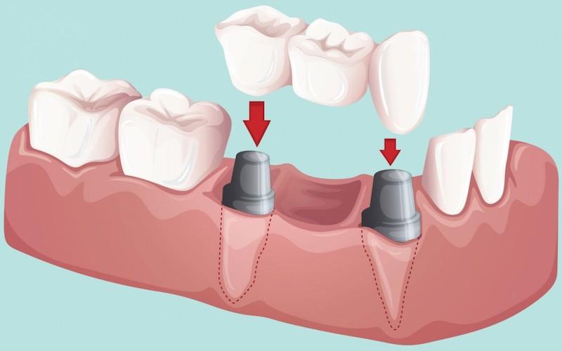 Làm cầu răng thay thế cho răng số 6 bị mất