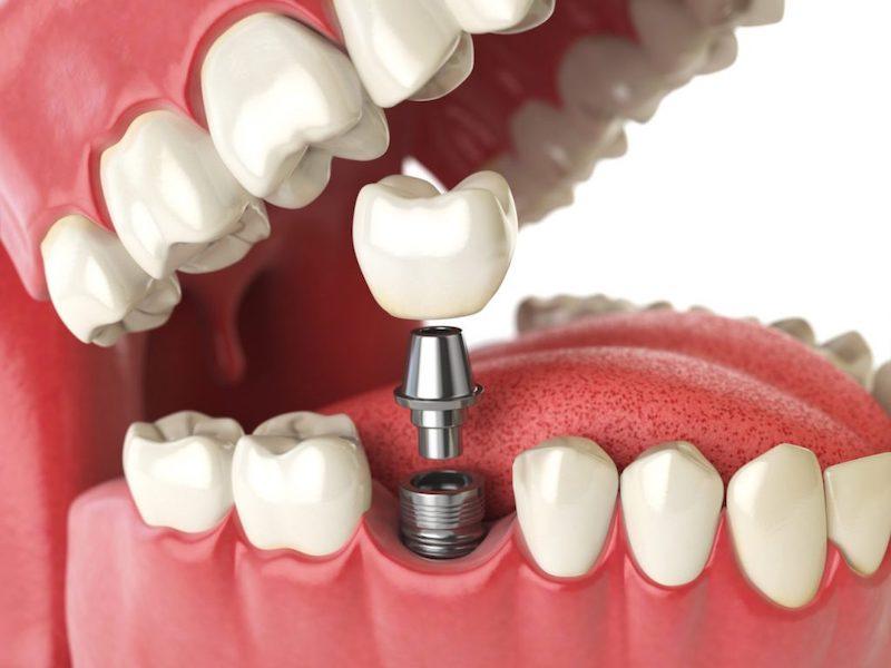 Trồng răng Implant cho răng số 6 trước khi niềng răng