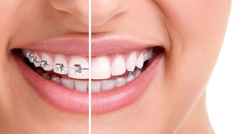 Một số lưu ý trước, trong và sau khi niềng răng