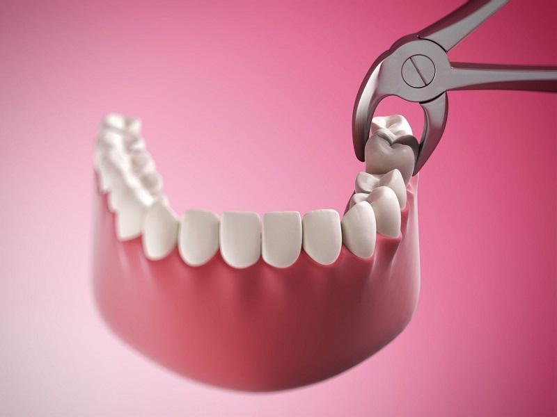 Răng số 8 trong khoang miệng của con người