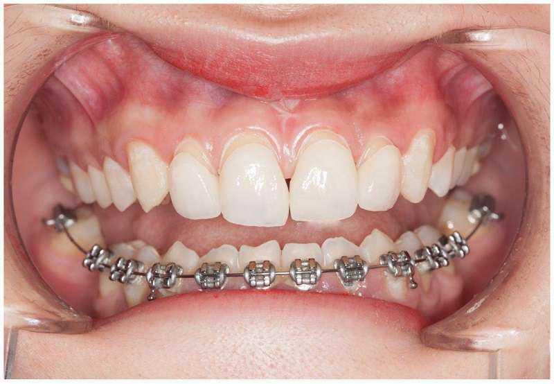 Nhổ răng số 8 không gây đau đớn