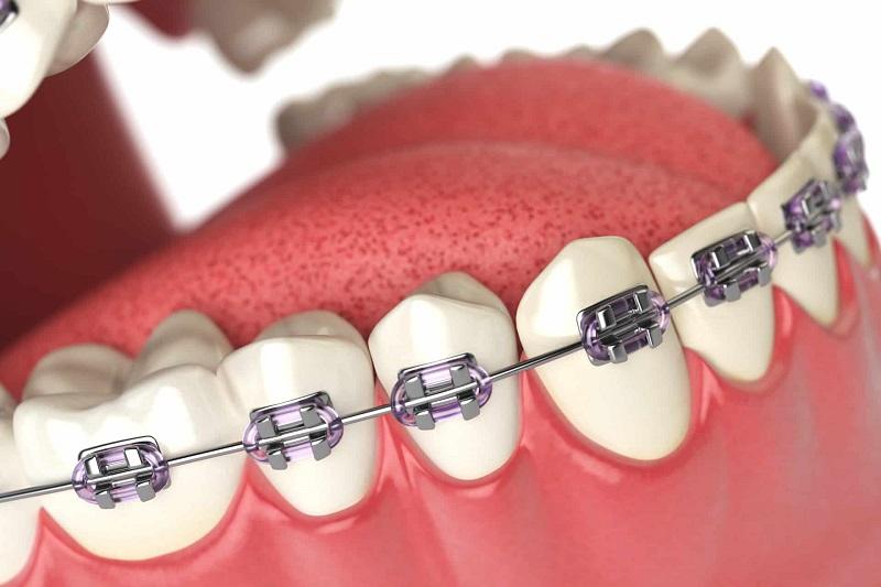 Mục đích niềng răng nhổ răng số 8 để hiệu quả chỉnh nha được tốt nhất