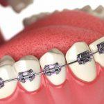 Niềng răng nhổ răng số 8 nên hay không? Giải đáp chi tiết
