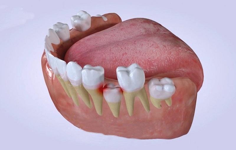 Dùng lưỡi hoặc tay đẩy răng cũng là cách giúp răng trở về vị trí đúng