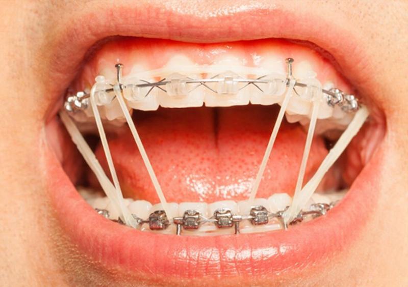 Dùng thun chỉnh nha niềng răng là biện pháp được nhiều người áp dụng