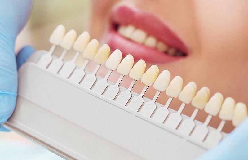 Bọc răng sứ có hại không là thắc mắc của không ít người có nhu cầu.