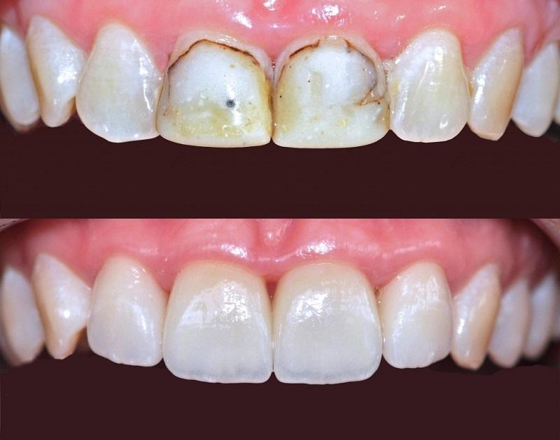 Việc làm sạch cao răng được khuyến khích thực hiện 2 lần/năm