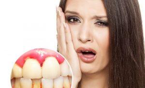 Răng bọc sứ bị chảy máu có thể do viêm nướu