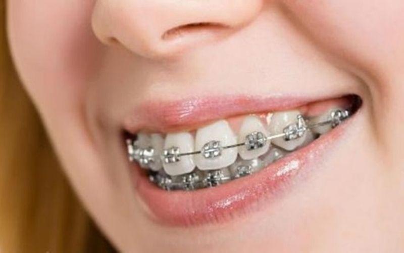 Niềng răng là phương pháp khắc phục hiệu quả hàng đầu