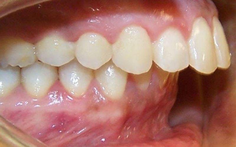 Hình ảnh răng hô nặng