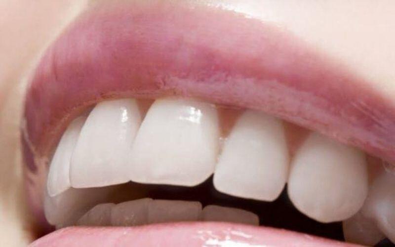 Hiệu quả chỉnh răng hô phụ thuộc vào nhiều yếu tố khác nhau