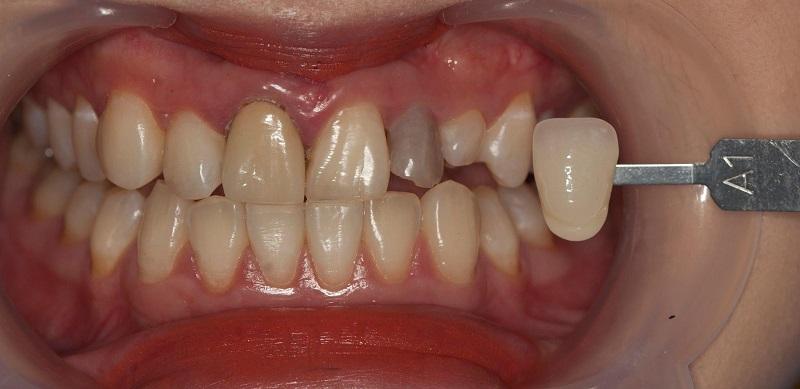 Bọc răng sau khi lấy tủy để tăng tính thẩm mỹ cho hàm răng