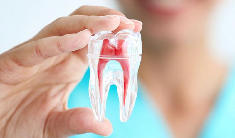 Răng lấy tủy có nên bọc lại không là thắc mắc của rất nhiều người