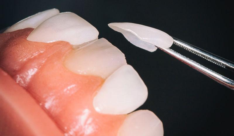 Miếng dán sứ Veneer rất mỏng và màu sắc giống răng thật