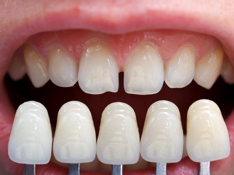 Dán răng sứ Veneer là phương pháp mang lại tính thẩm mỹ cao