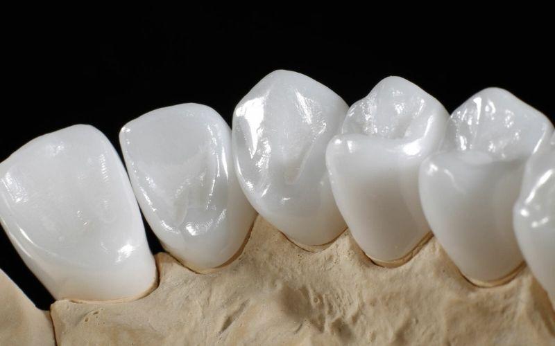 Răng sứ Venus có xuất xứ từ Đức, là sản phẩm sử dụng 100% từ sứ cao cấp