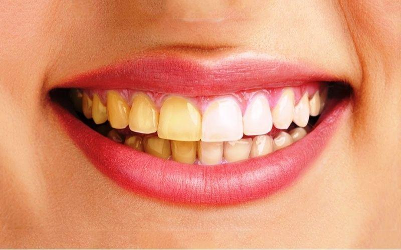Những người có hàm răng bị ố vàng nên sử dụng răng Venus