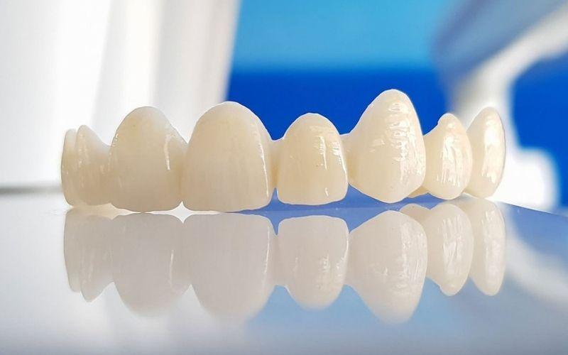 Zirconia là loại răng được làm hoàn toàn bằng sứ