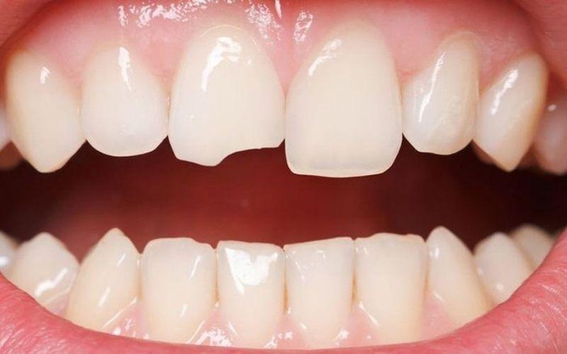 Những người có hàm răng bị sứt mẻ có thể sử dụng răng sứ Zirconia