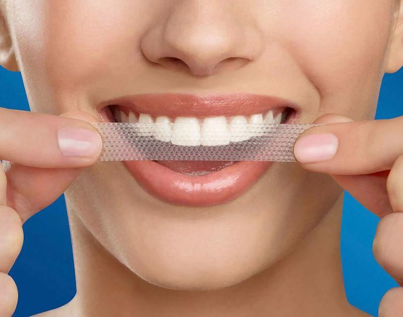 Miếng dán trắng răng có ưu và nhược điểm nhất định