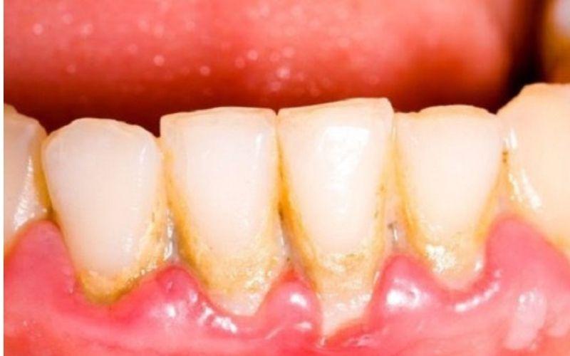 Cao răng là mối nguy hại đến sức khỏe răng miệng