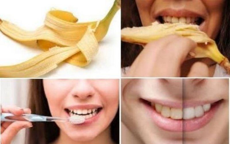 Tự lấy cao răng bằng vỏ chuối đơn giản và hiệu quả