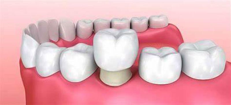 Những lợi ích của việc bọc răng sứ