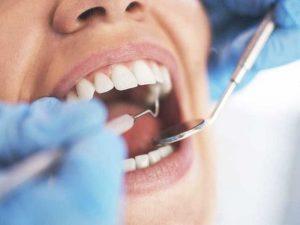 tuổi thọ của răng sứ