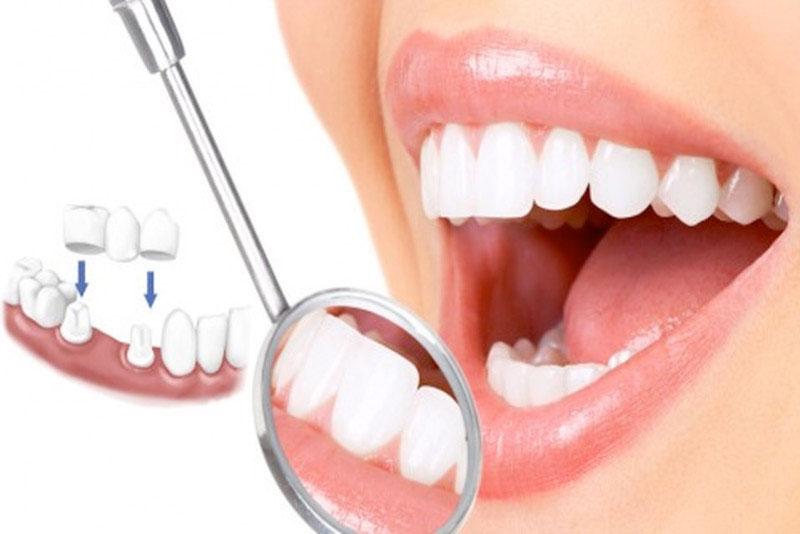 Độ bền khi bọc răng sứ cao, chi phí thấp phù hợp với tất cả mọi người
