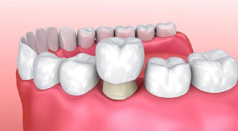 Bọc răng hàm thường được chỉ định trong một số trường hợp