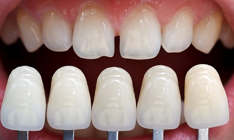Giá bọc răng có thể thay đổi tùy vào từng đối tượng