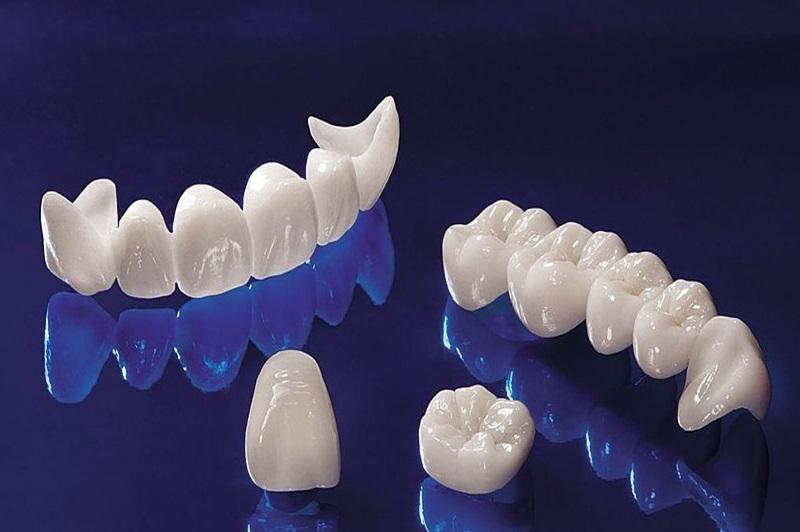 Có nhiều loại răng khác nhau để bọc sứ