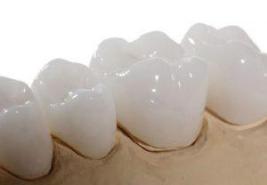 Giải đáp bọc răng sứ Venus giá bao nhiêu? Những lưu ý khi thực hiện