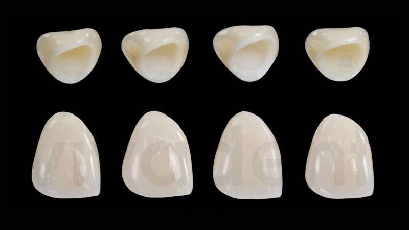 Bọc răng sứ Venus giá bao nhiêu? Thấp nhất trong các loại răng toàn sứ