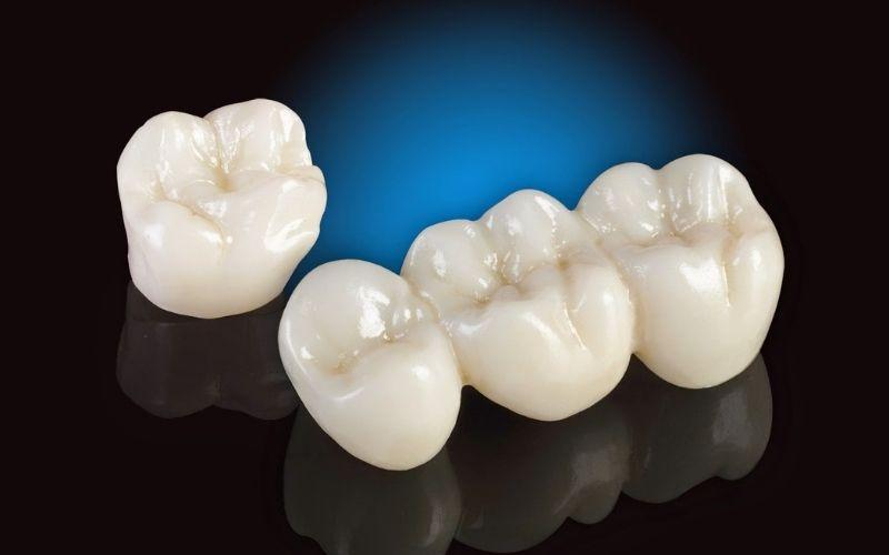 Bạn nên sử dụng loại răng hoàn toàn bằng sứ để ngăn chặn tình trạng oxy hóa gây đen viền nướu và hôi miệng